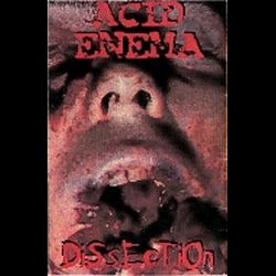 Review for Acid Enema - Dissection