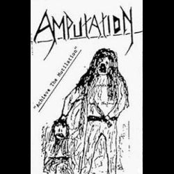 Review for Amputation (NOR) - Achieve the Mutilation